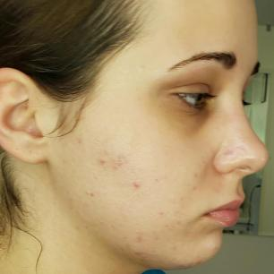 Skincare Product Reviews For Combo Acne Prone Skin Live Clean Dry